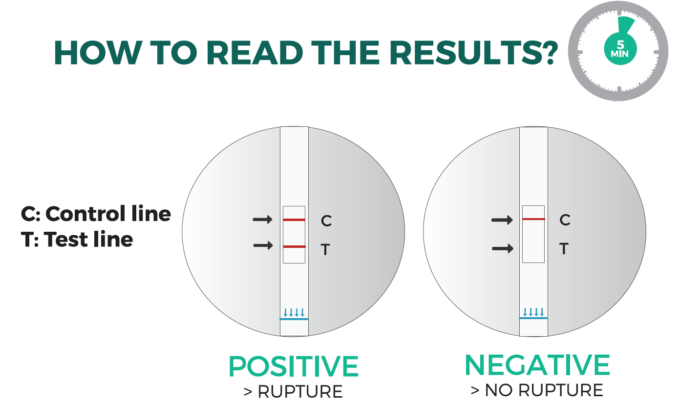 How to Read the results - NADAL PROM Amniotic Fluid Test